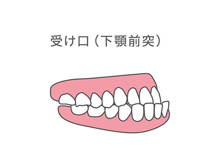 受け口,下顎前突,歯科矯正,必要,子供,何歳,どのような,方法